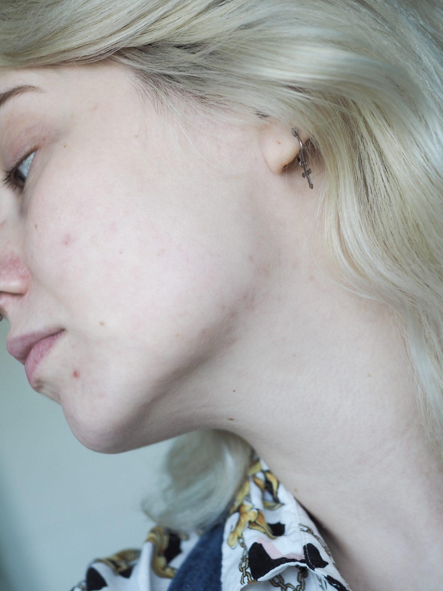 Pre derma roller skin