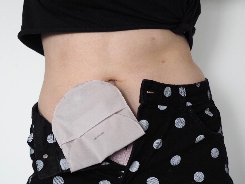 IBD and stoma bag